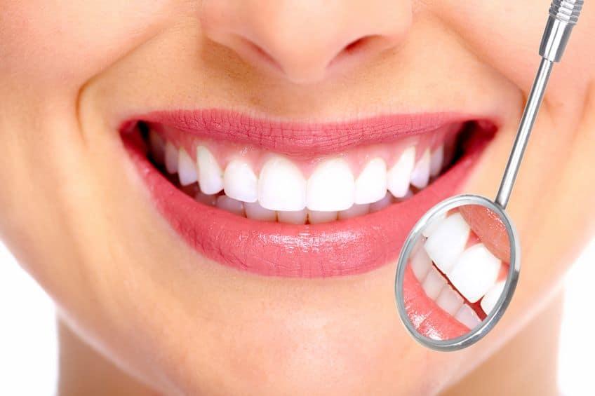 הלבנת שיניים- שמונה מיתוסים שעליכם להכיר מקרוב.