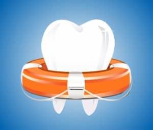 השתלת שיניים ושיקום הפה ביום אחד