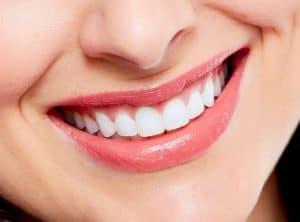 מה לעשות וממה מומלץ להימנע לאחר הלבנת שיניים