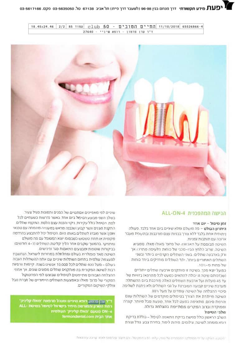 איזה שיטה של השתלת שיניים מתאימה לכם?