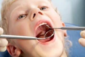 טיפולי שיניים לפעוטות לילדים ולנוער