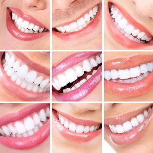 למה לצפות אחרי השתלת שיניים ביום אחד?