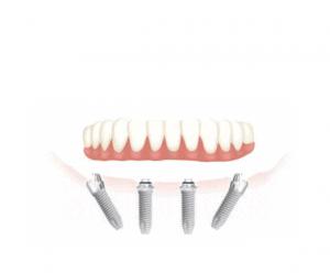 השתלת שיניים אול און פור ושיקום הפה ביום אחד