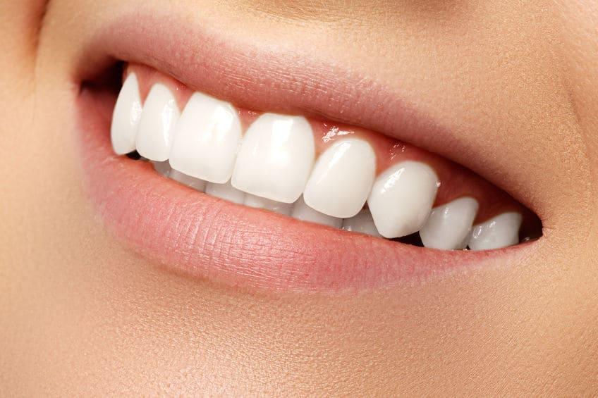 עיצוב השיניים ושיפור החיוך