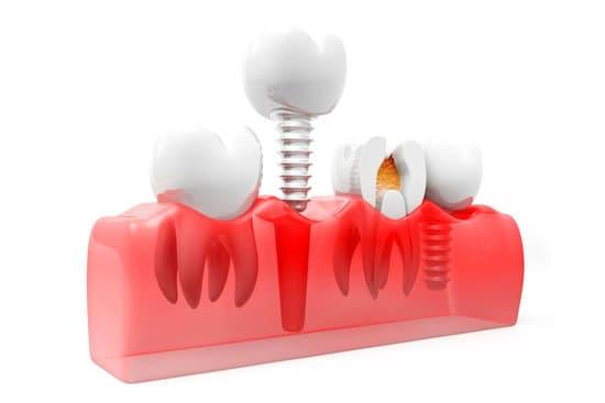 תהליך השתלת שיניים ביום אחד