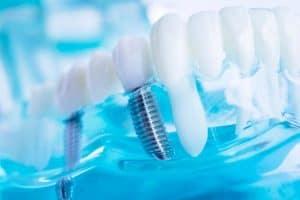 יתרונות וחסרונות להשתלת שיניים