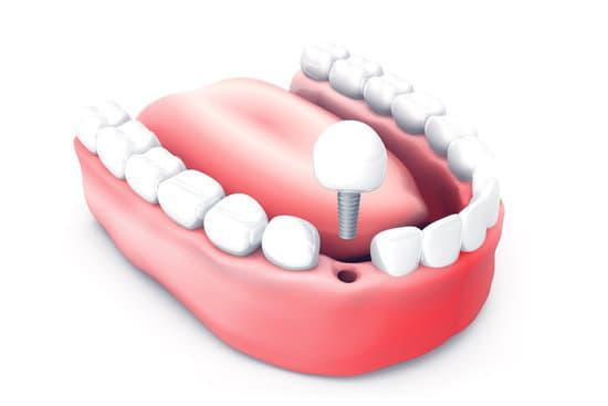השתלת שיניים עם טיפולים נוספים לתוצאה מעולה לאורך זמן