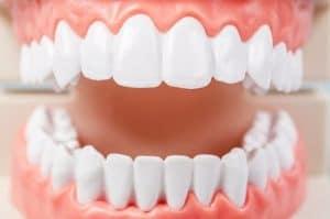 ציפוי שיניים- חשוב לדעת לפני קבלת ההחלטה