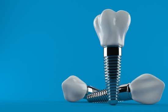 יתרונות שיטת השתלת שיניים ביום אחד