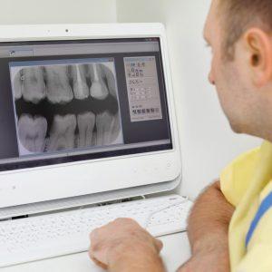 רפואת שיניים ושיקום הפה ביום אחד