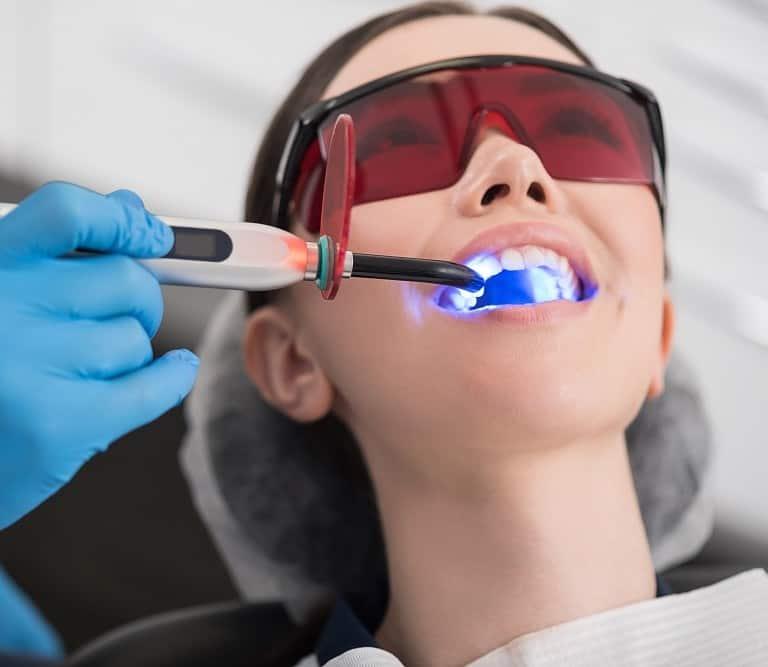 לשפר את החיוך במהירות עם הלבנת שיניים