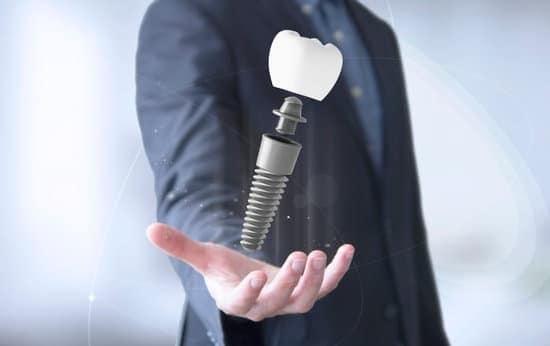הרקע להתפתחות השתלת שיניים בשיטת אול און פור
